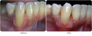 ConnectiveTissueGumGraft-CapitalPeriodonticsOttawa-DentalImplants