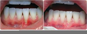 FreeGingivalGumGraft-CapitalPeriodonticsOttawa-DentalImplants